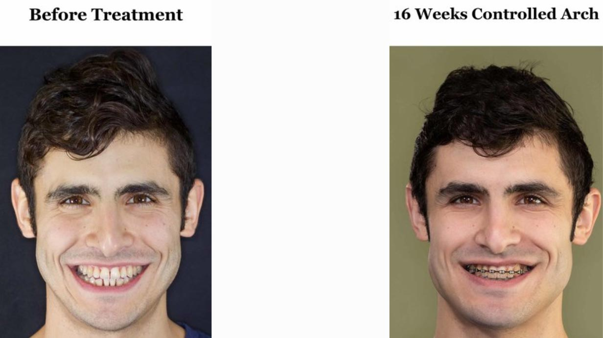 In my opinion I did not have a cant before treatment. But I certainly still do at this point, after 10 months of AGGA and almost 4 months of braces.