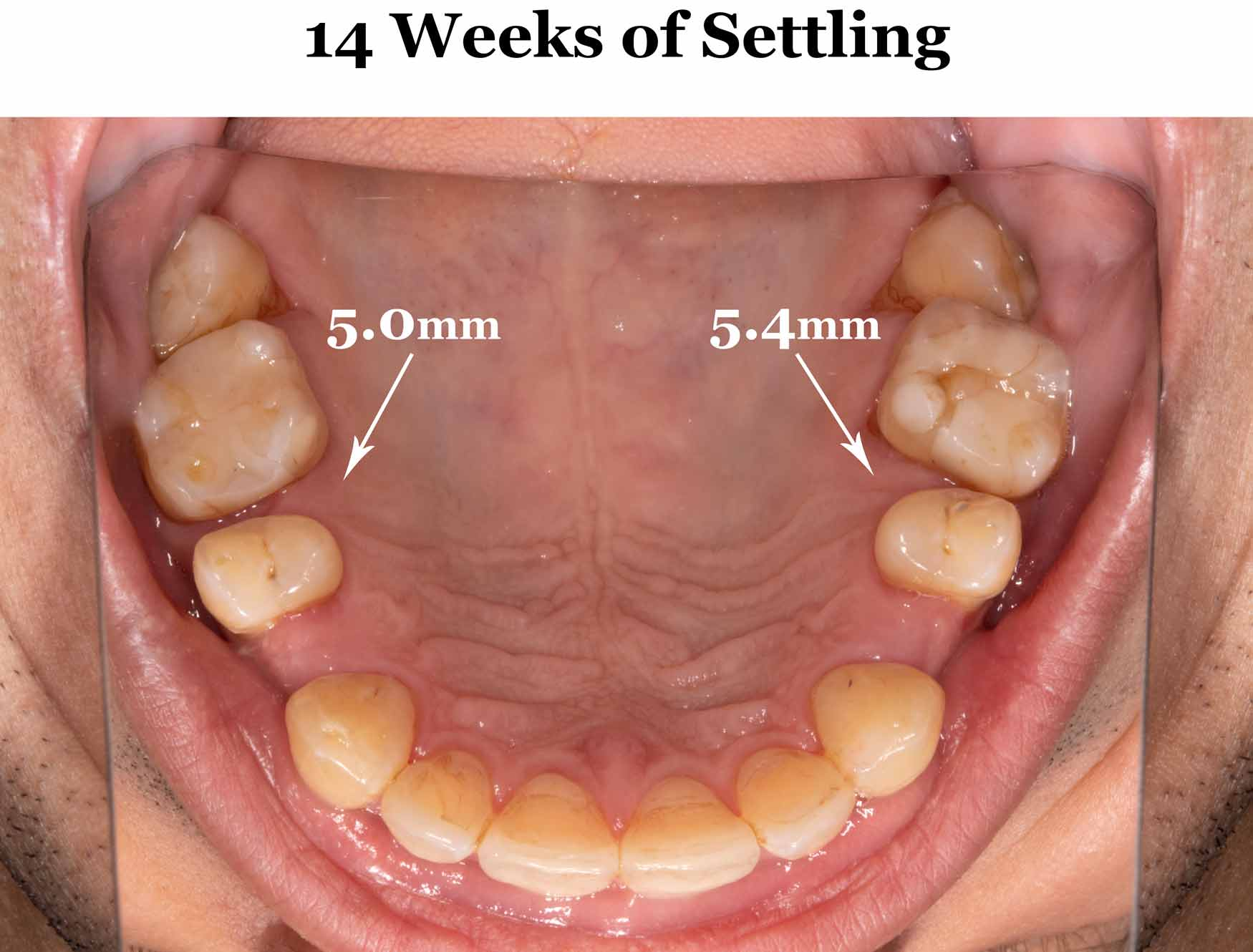 14-weeks-settling_upper-straight-down.jpg