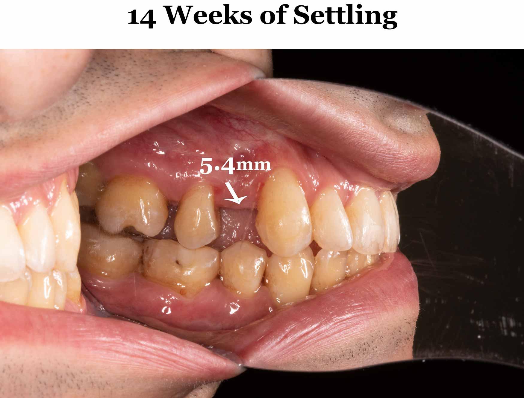 14-weeks-setting_left.jpg