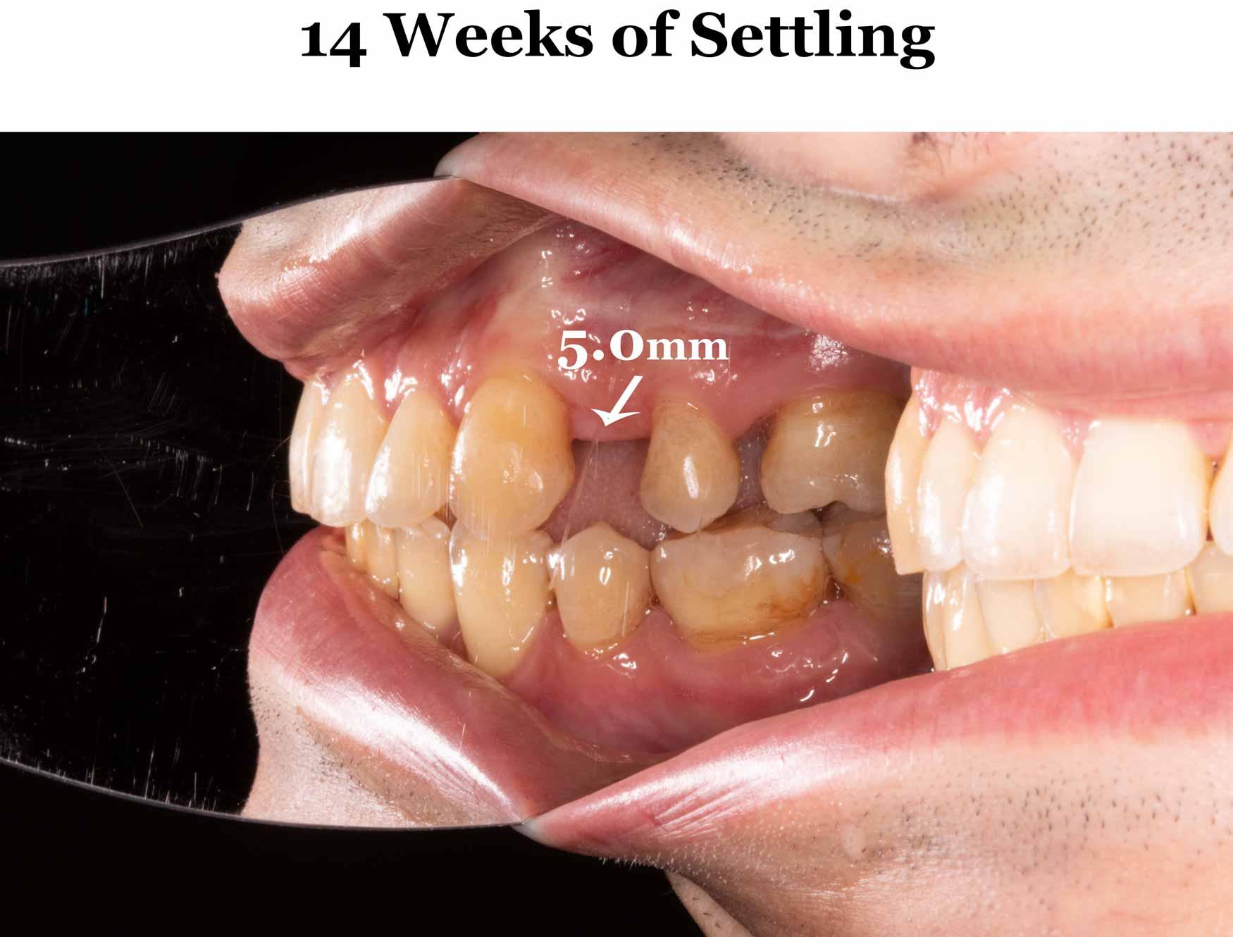 14-weeks-settling_right.jpg