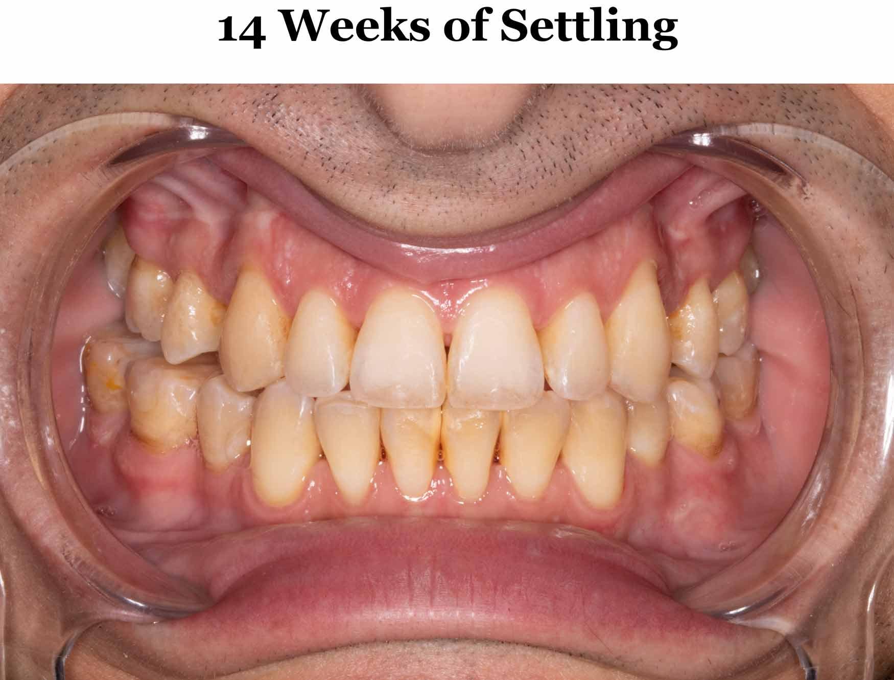 14-weeks-settling_occlusion.jpg