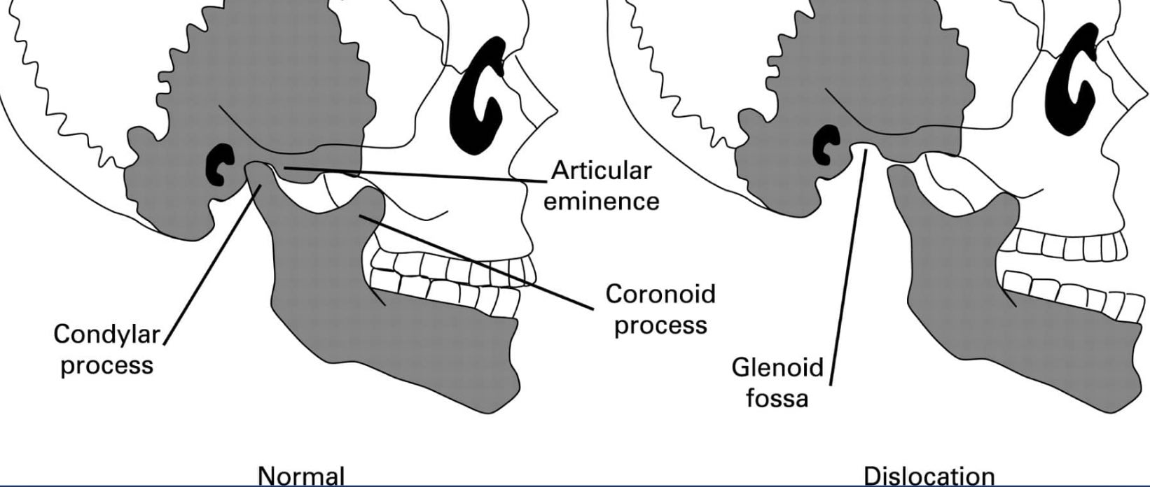 The left image shows normal condyle position in the TMJ. The right image shows a condyle that is dislocated forward. If you expand too far with AGGA you may end up dislocated forward in order to avoid a large overbite.
