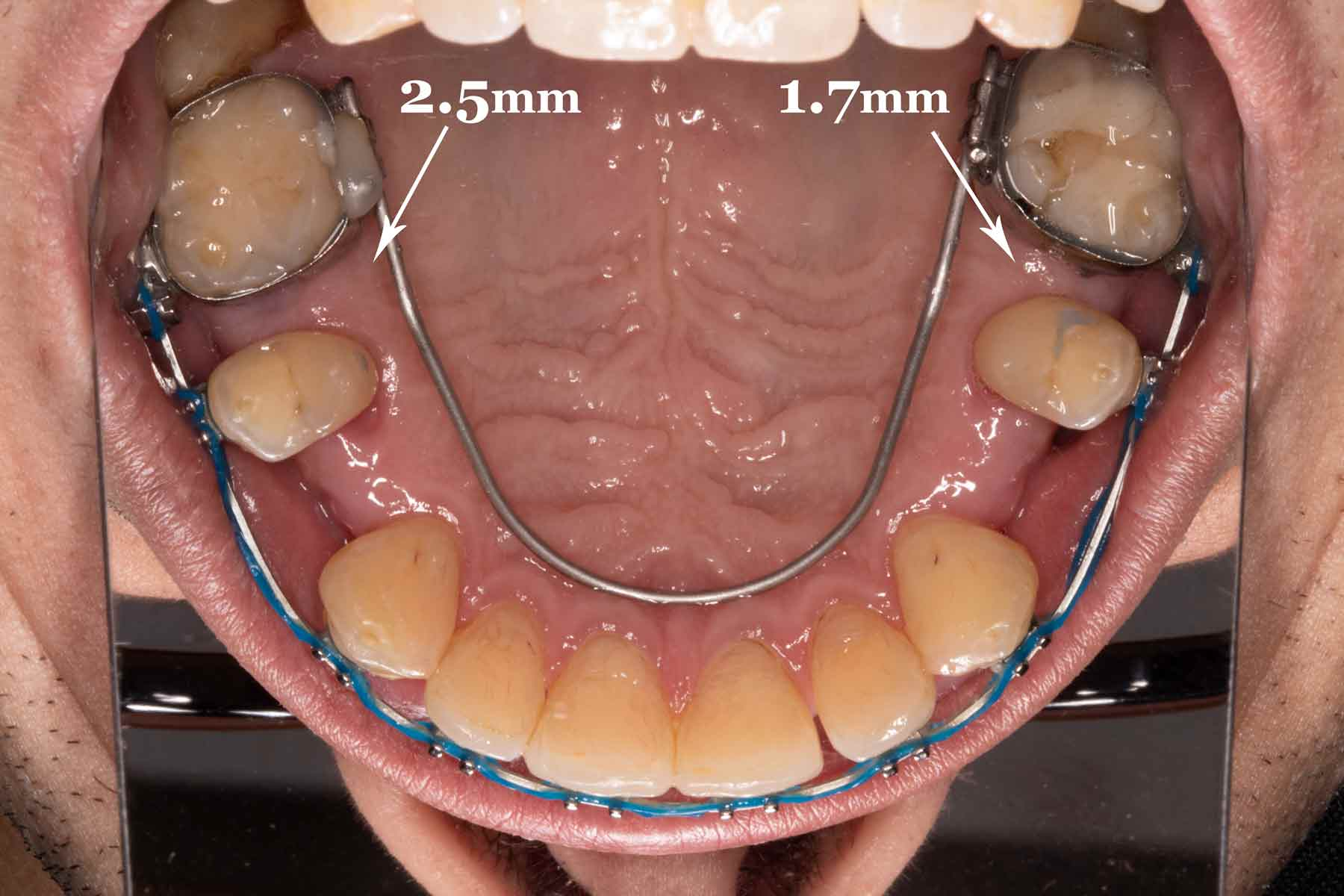 The Controlled Arch leverages the combined root strength of the front teeth to drag the back teeth forward to close the AGGA gaps. This can be problematic for patients whose front teeth have already been compromised by aggressive AGGA expansion, since using the front teeth for anchorage places additional stress on them.