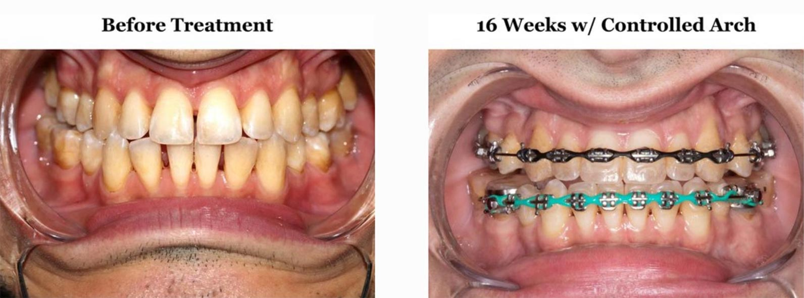 Even after 16 weeks of treatment, the Controlled Arch system seemed to have no effect on maxillary widening.