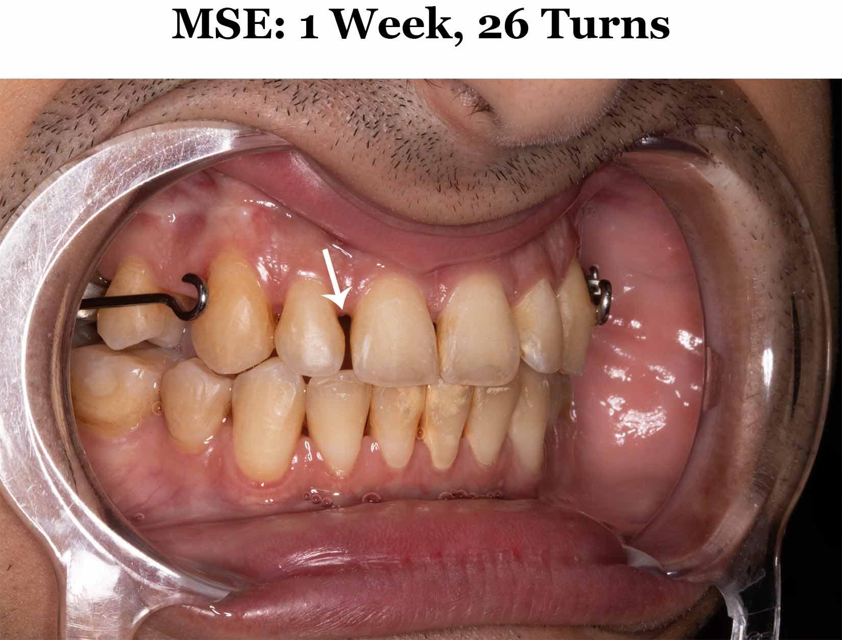 1 Weeks MSE_Diag Smile 2.jpg