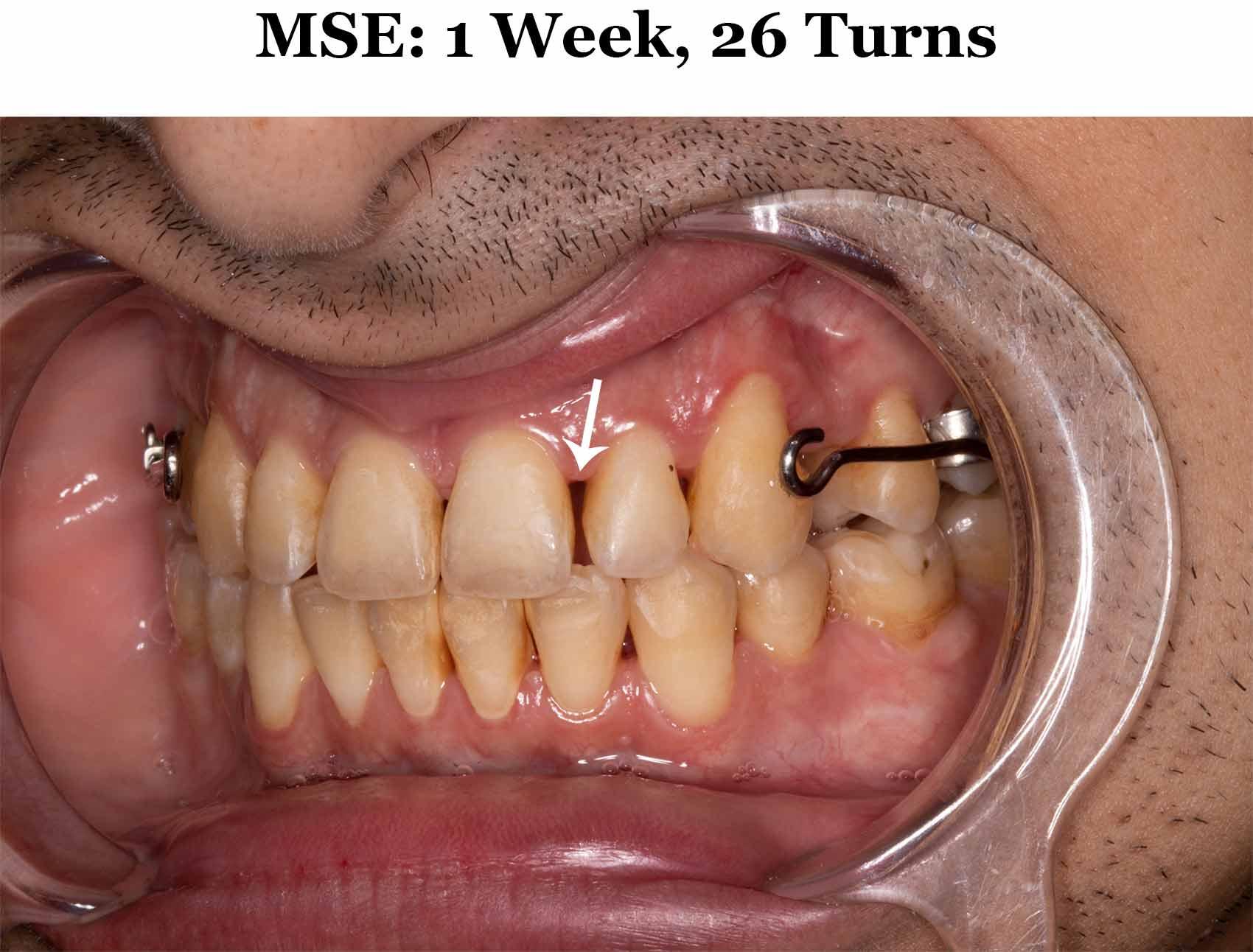 1 Week MSE_Diag 1.jpg