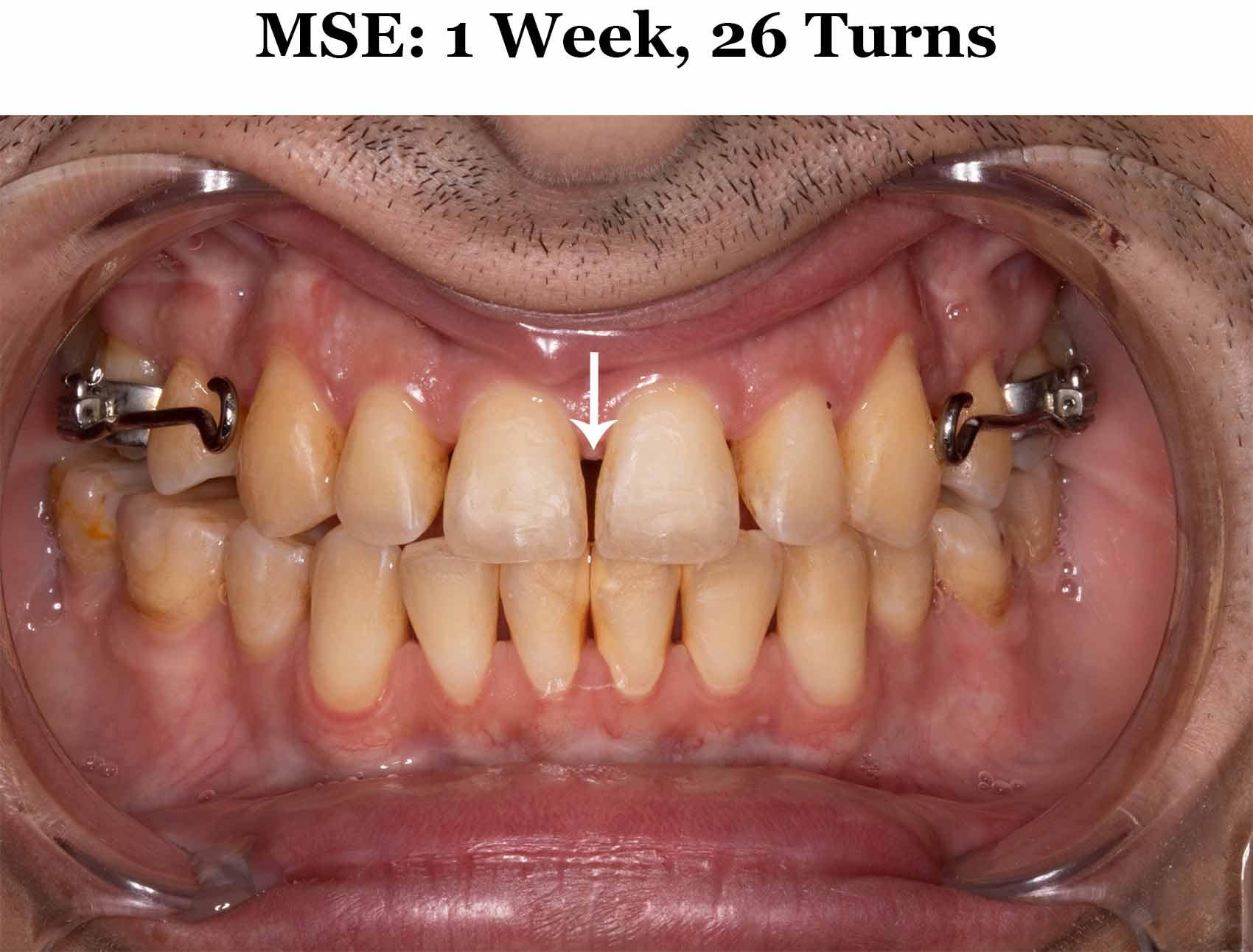 1 Week MSE_Diastema.jpg