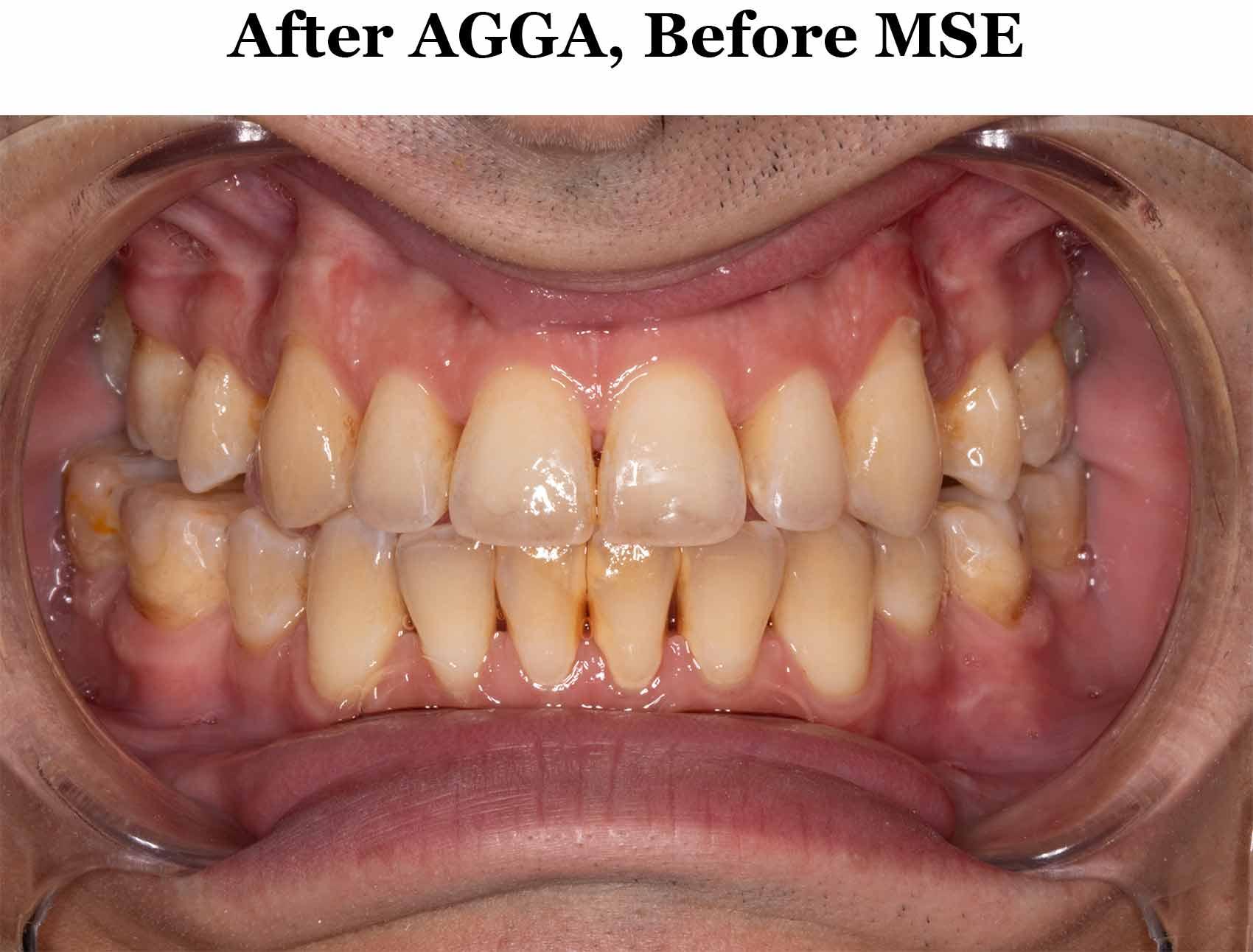 Before MSE_Smile Lips Spread.jpg
