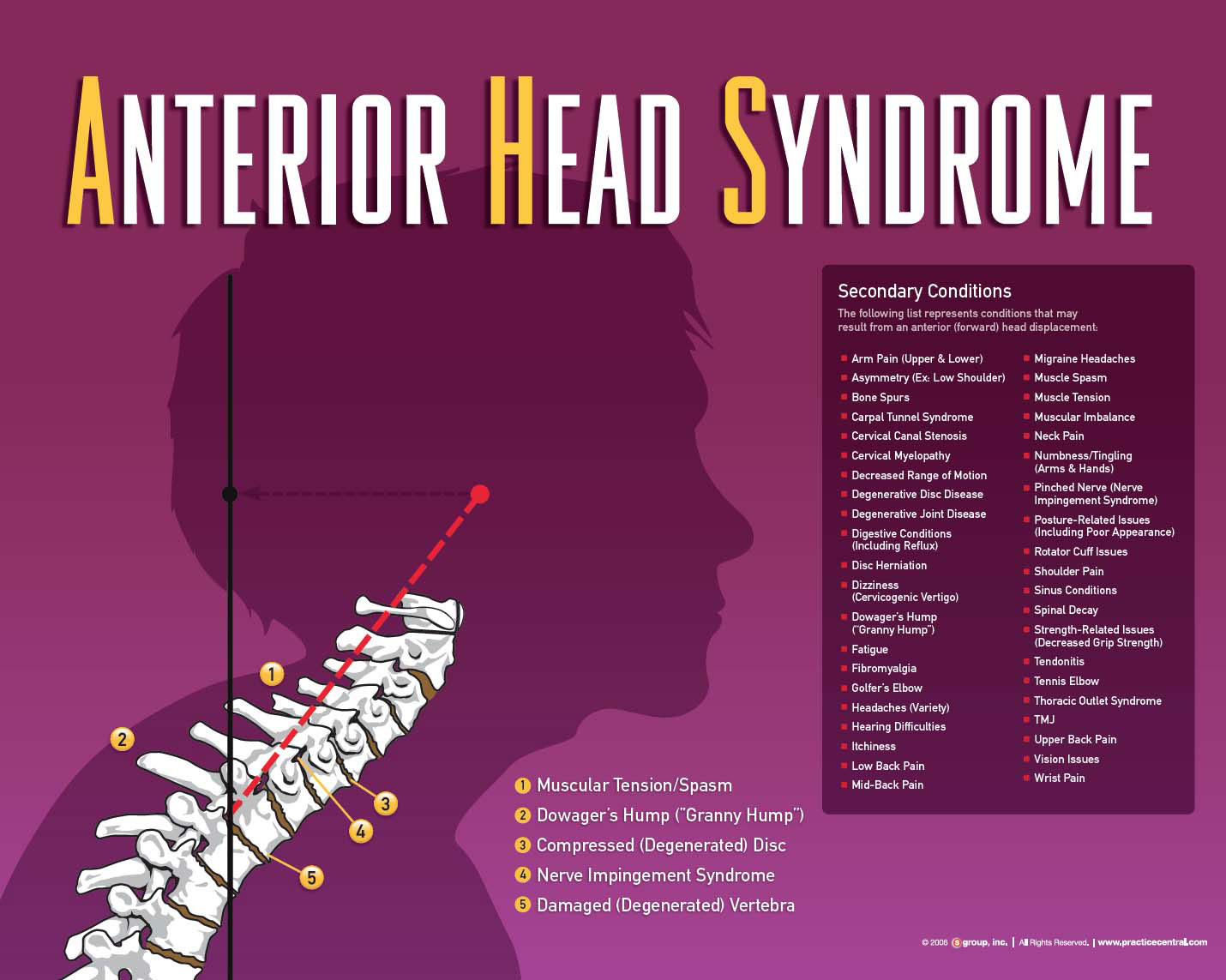 Anterior head syndrome can lead to problems like headaches, migraines, shoulder pain, TMJ, disc degeneration, muscle spasm, nerve impingement.