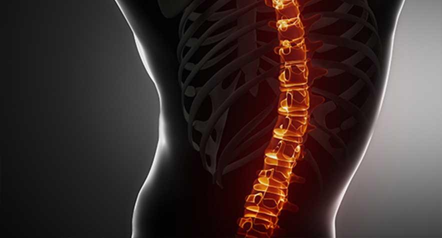 evolve-back-pain.jpg