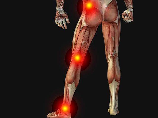 Check out our most recent blog article on sciatica and how PT can help you alleviate your pain from it! Link in BIO! #rehab #evolve #physicaltherapy #sciatica #lowbackpain #sportsrehab