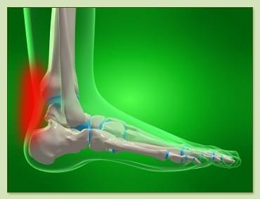 Check out our most recent article on Achilles tendinitis and how PT can help you get rid of it! LINK in BIO! #rehab #evolve #achillestendinitis #sportsrehab #physicaltherapy