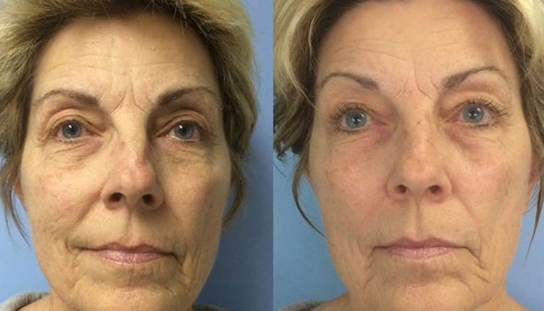 Left image: In a 4-week clinical trial, subjects were treated with Celluma for 30 minutes, 3 times a week, for 4 weeks. Right image: 12 weeks following the final Celluma treatment, the facial tissue maintains its rejuvenated appearance.