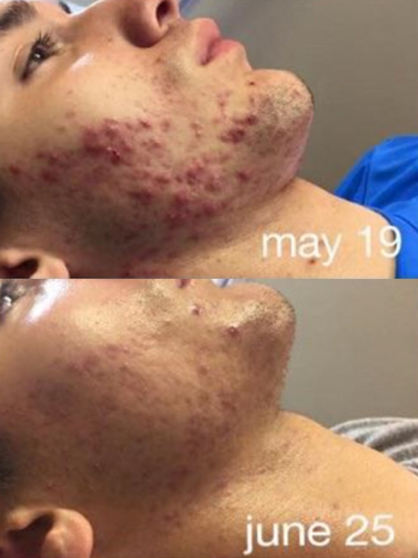 Before & 5 Weeks Later, 2x a Week.
