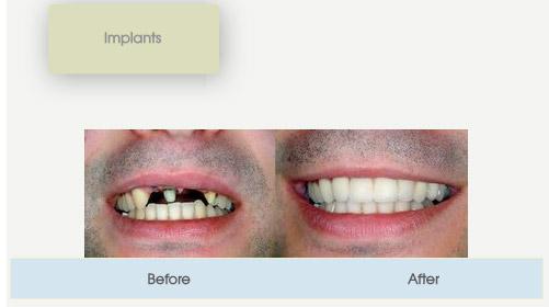 implants.jpg