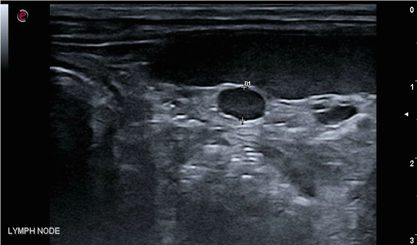 Rounded hypoechoic lymph node near spleen.