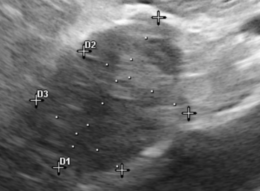 Sonographic Findings of a Right Adrenal Mass and Saddle Thrombi in a 9 Year-Old Pit Bull - Sonographer: Tyler Anderson DVM