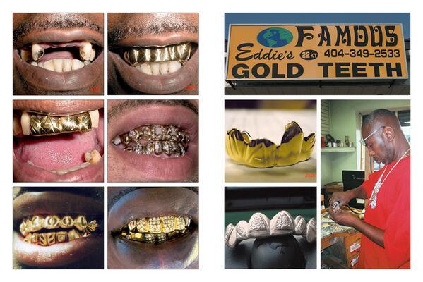 Photo courtesy of  Eddie's Famous Gold Teeth