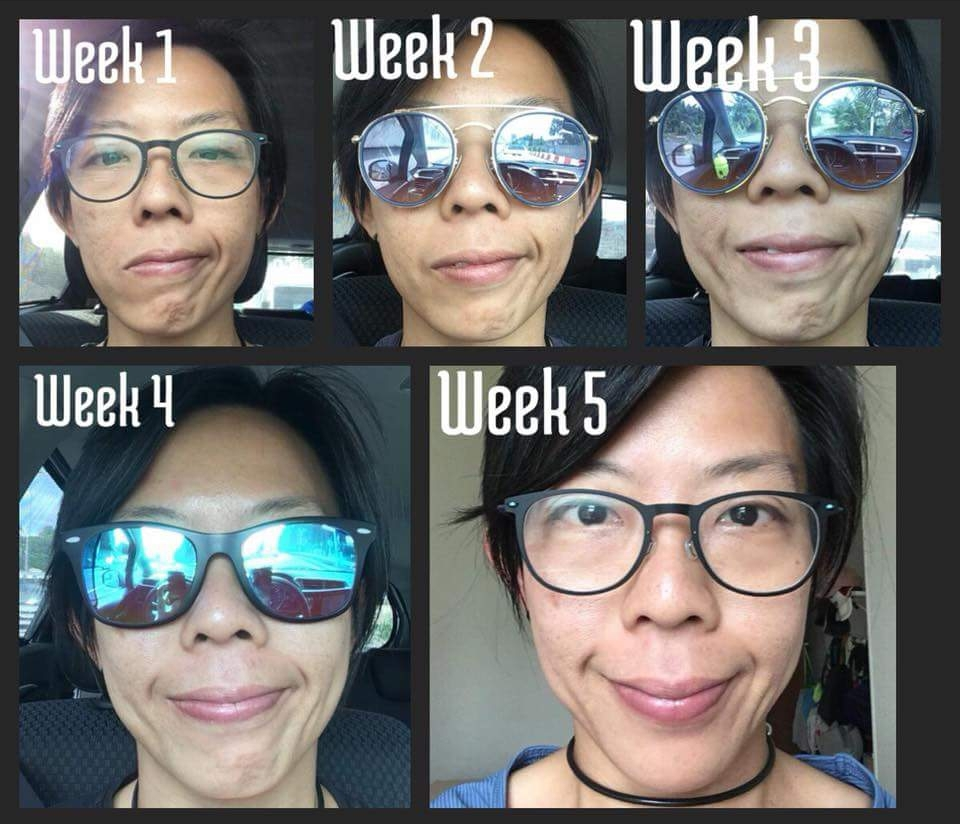 06- 5 week Bells Palsey Before and After.jpg