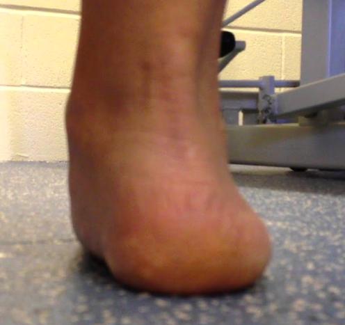 ankle eversion pronation