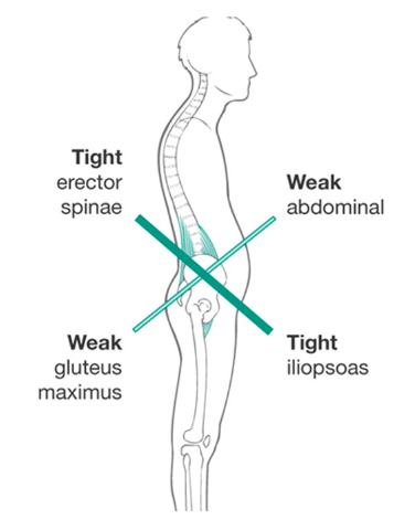 lower cross syndrome
