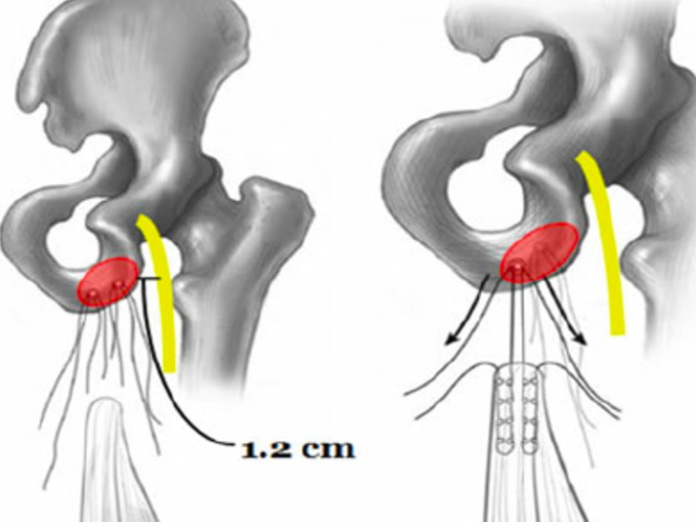 Note the narrowed space between the ischium and the femur