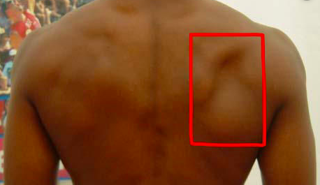 muscle wasting of infraspinatus