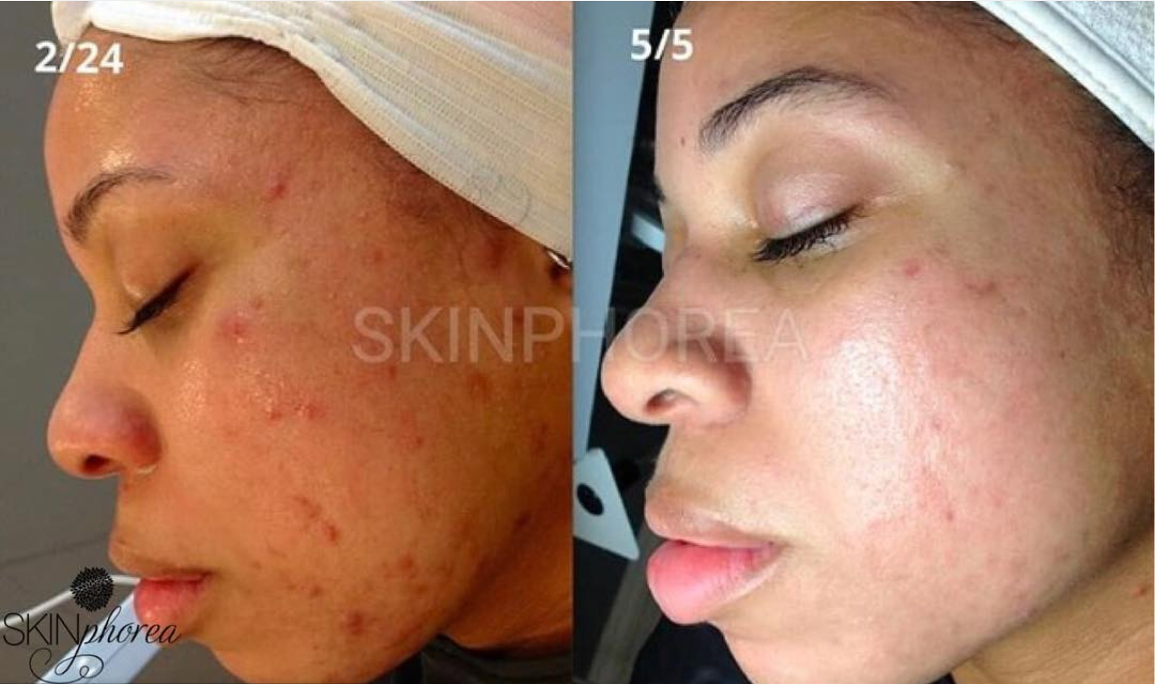 Shaquia's skincare journey after receiving treatments and advice not to avoid eating dairy from the estheticians at Skinphorea.