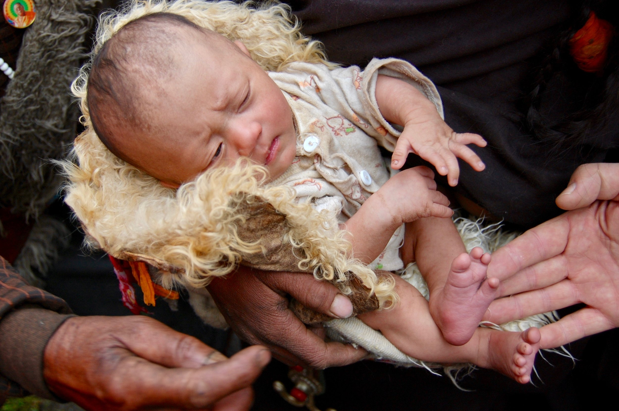 An infant shows signs of in-utero nutritional deficiency, a common problem in the remote communities of Tibet (Kham Region, Sichuan)
