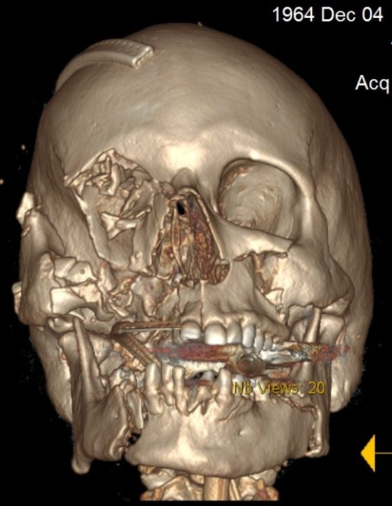 Photo: 3D image from Harborview Medical Center