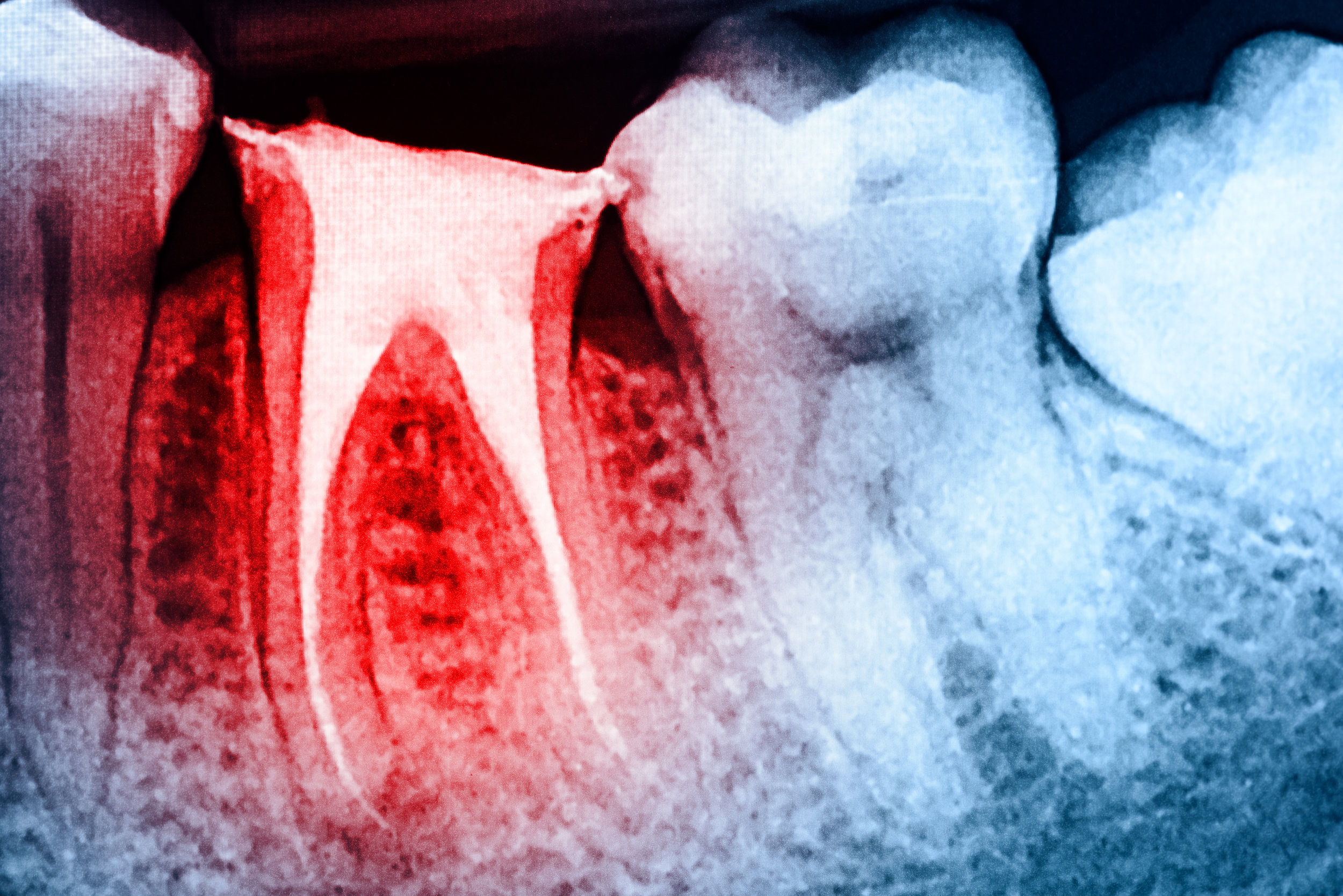 root canal treatment xray
