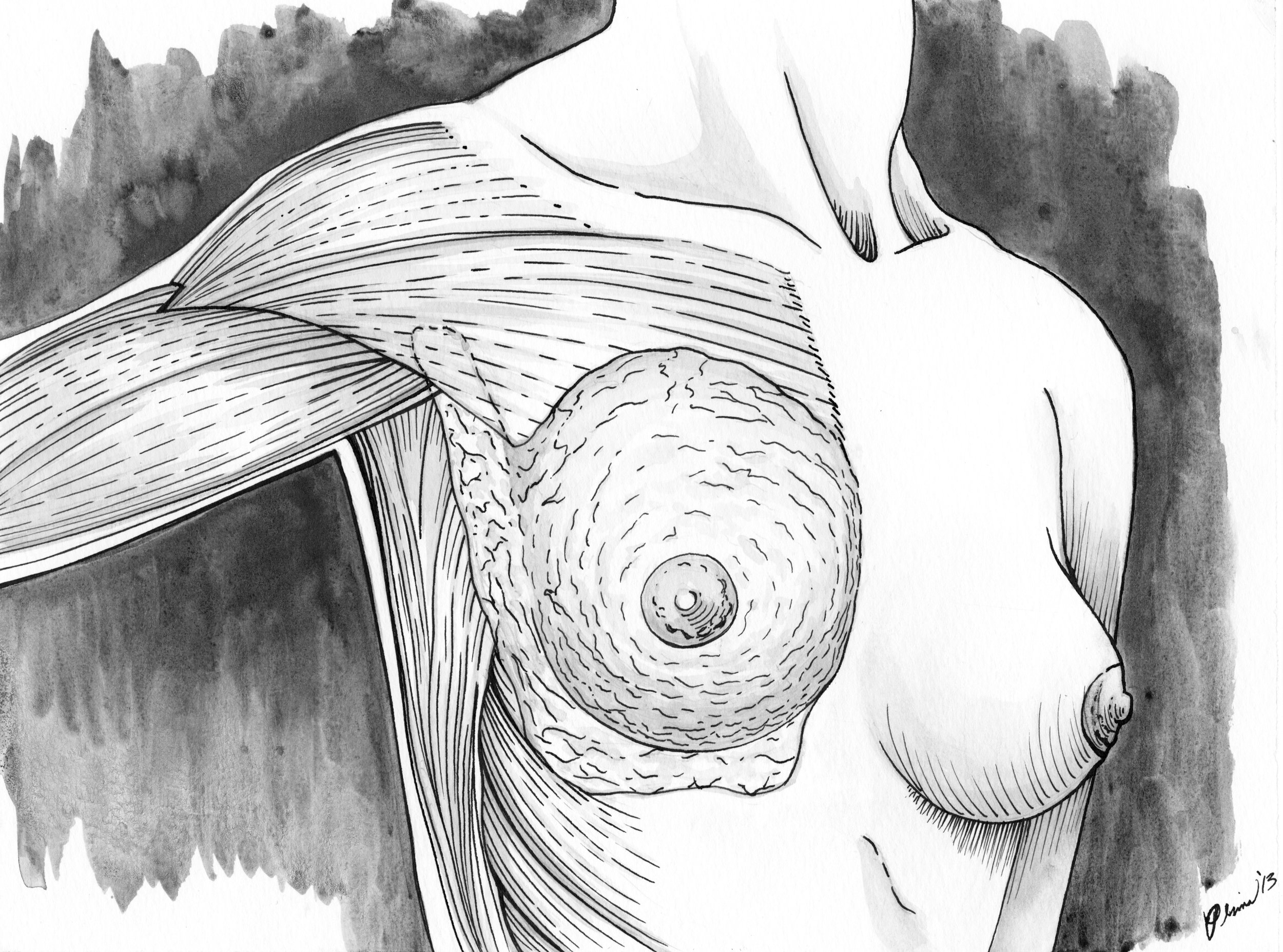 lymphatic_breast_muscular scan (1).jpg