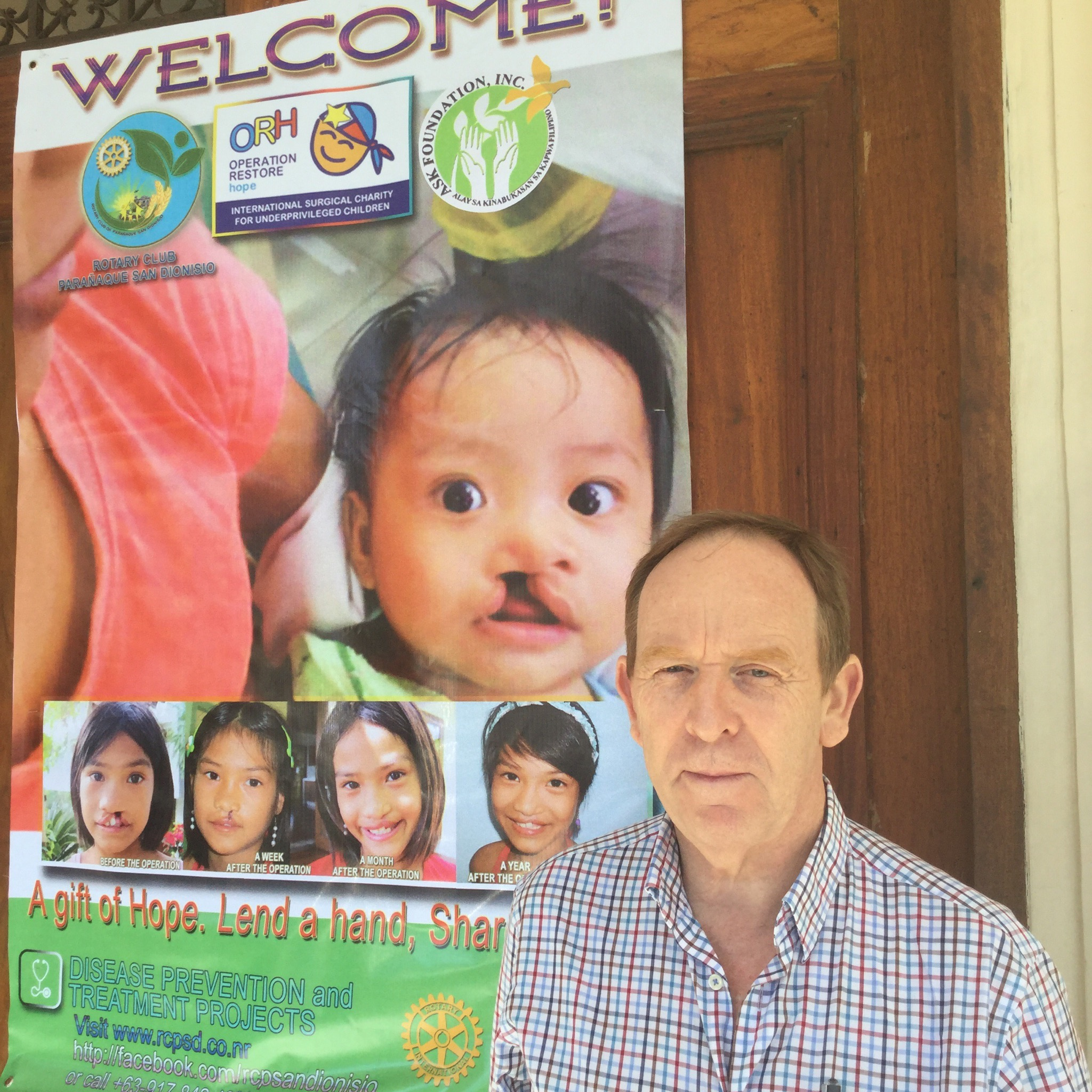 John Kinsella (above) at Manila Hospital where Operation Restore Hope (International NGO) are operating on underprivileged children and teenagers with cleft palate.