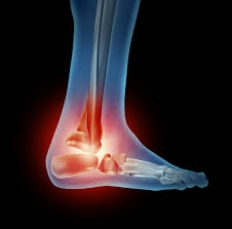 ANKLE/FOOT -