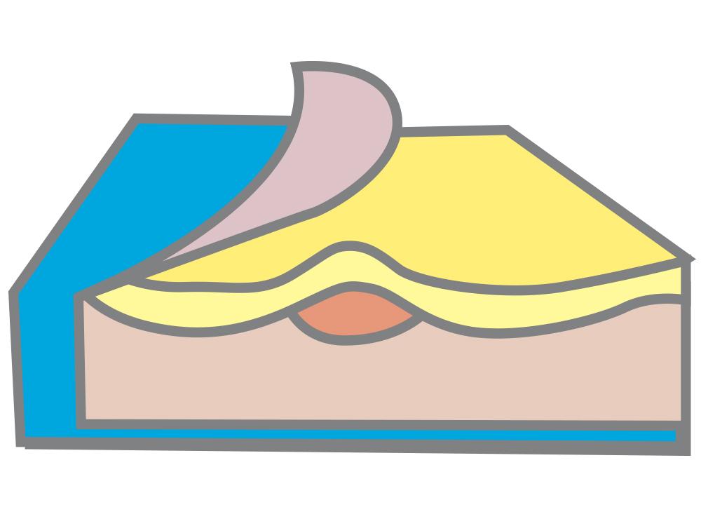 Profile memory foam - Low to medium risk