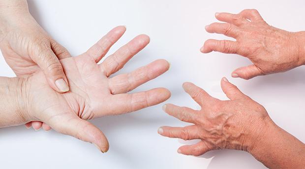 Rheumatoid-Arthritis-and-Cancer-Connection.jpg
