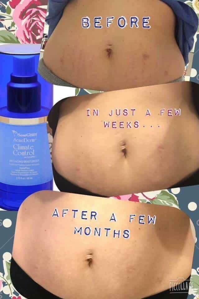 Climate Control for Stretch Marks