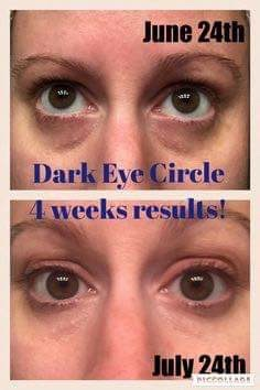 Senederm Solutions Dark Circle Eye Treatment Fearless Beauty By
