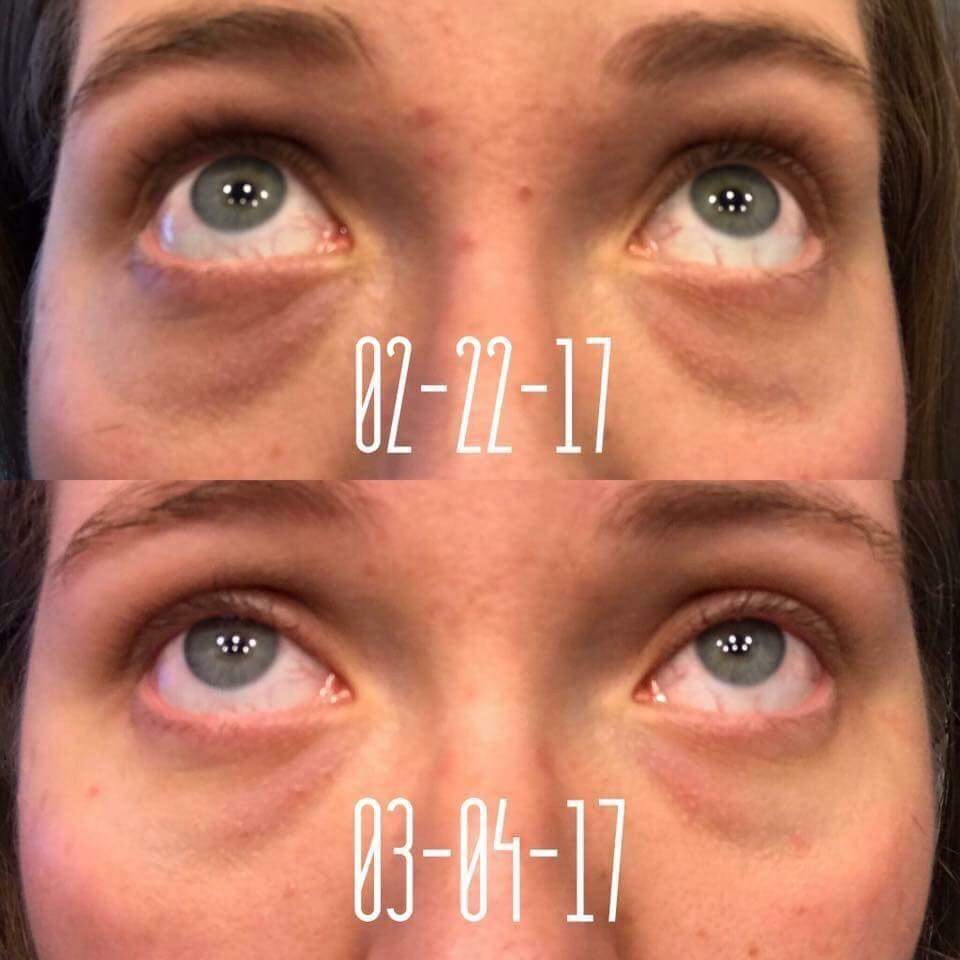 SeneDerm Solutions Dark Circle Eye Treatment Review