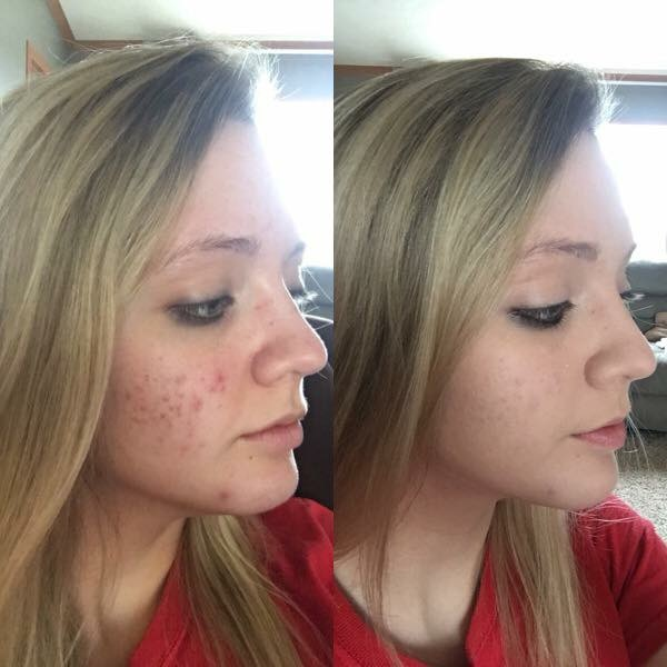 Spot-On Acne Treatment Reviews
