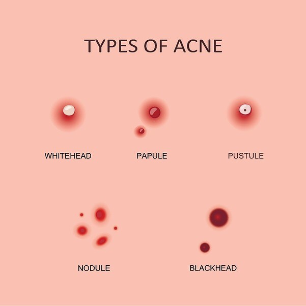 There are so many different types of acne, and a Body Face Image Solution can help you get rid of them with an Acne Facial!  Call to book an appointment today!  #bodyfaceimagesolutions #acnefacial #acne #acnetreatment #acneproblems #acnefacials #clearskin #pimples #skintreatment #facials #acnecontrol #medspamagic #atlmedspa #medicalspa #medspa #skincareroutine #skinproblems
