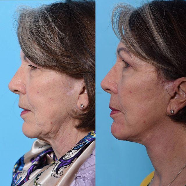 Beautiful revision facelift result, just 1 month out. Look at that jawline! 👌 . ☎️ 801.585.3223 🖥 www.drericcerrati.com 📍Salt Lake City, UT . . #plasticsurgeon #plasticsurgery #facialplasticsurgery #rhinoplasty #rhinoplastyspecialist #rhinoplastydiary #nosejob #facelift #faceliftspecialist #necklift #eyelift #eyebags #blepharoplasty  #browlift #beautiful #rapidrecovery #nonsurgicalfacelift #botox #filler #selfconfidence #transformation #natural #photooftheday #beforeandafter #saltlakecity #parkcity #utah