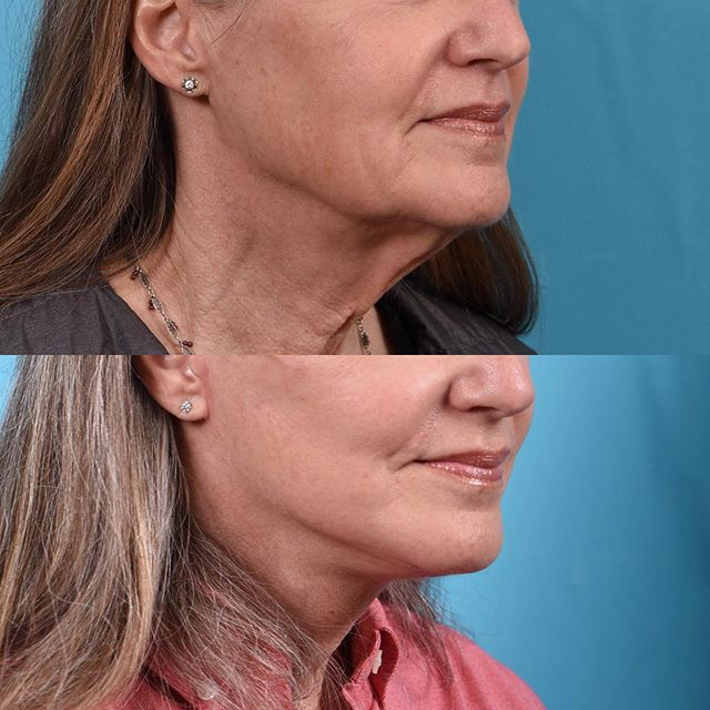 1 month after deep plane facelift. This patient has a dramatic improvement yet looks extremely natural! Wow!! . ☎️ 801.585.3223 🖥 www.drericcerrati.com 📍Salt Lake City, UT . . #plasticsurgeon #plasticsurgery #facialplasticsurgery #rhinoplasty #rhinoplastyspecialist #rhinoplastydiary #nosejob #facelift #faceliftspecialist #necklift #eyelift #eyebags #blepharoplasty  #browlift #beautiful #rapidrecovery #nonsurgicalfacelift #botox #filler #selfconfidence #transformation #natural #photooftheday #beforeandafter #saltlakecity #parkcity #utah