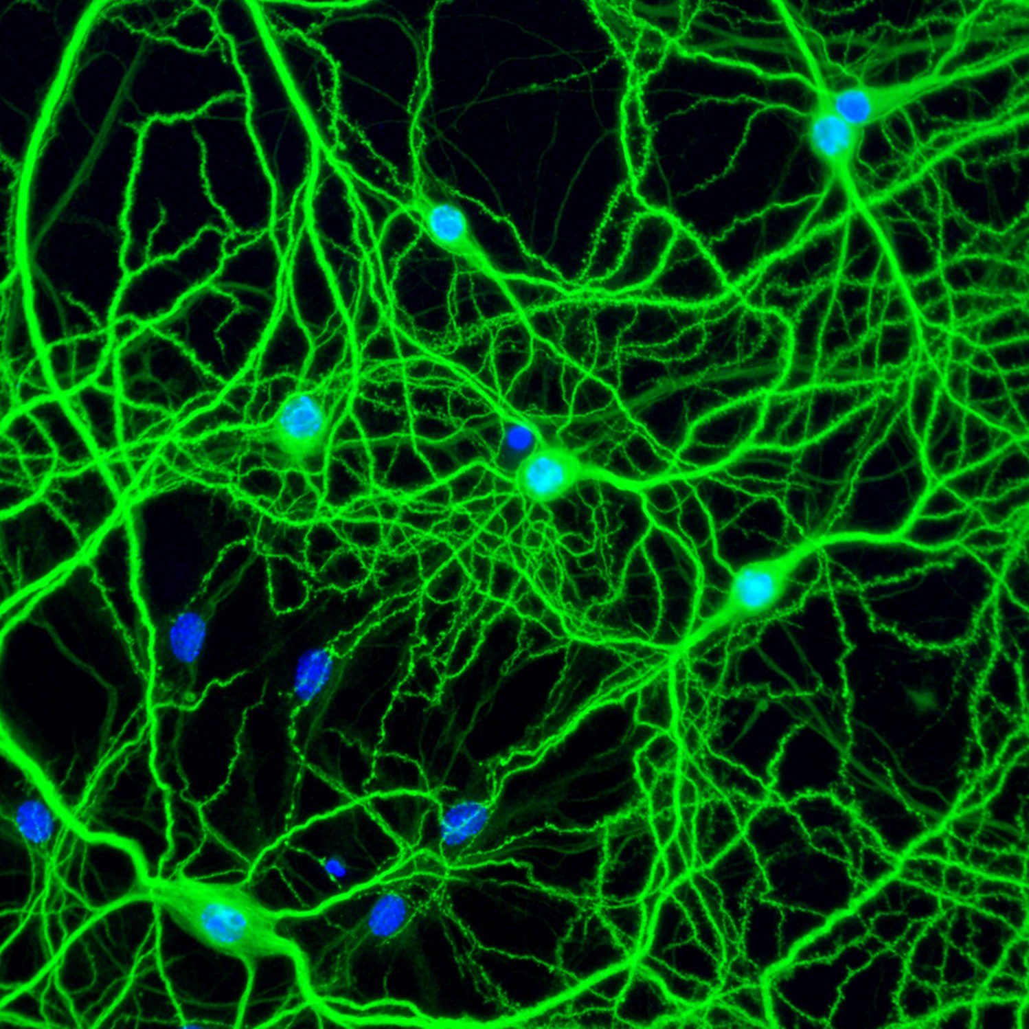 Primary neurons