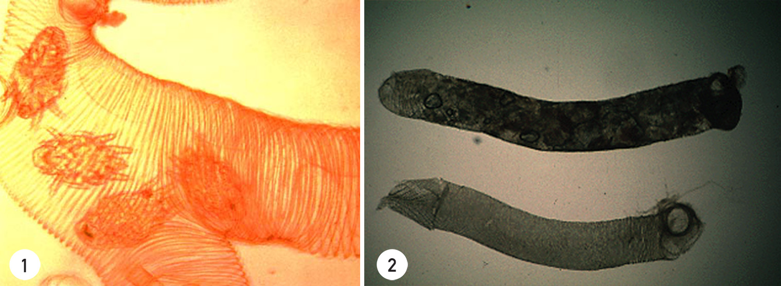 Non-infested healthy tracheae appear transparent and clear-amber