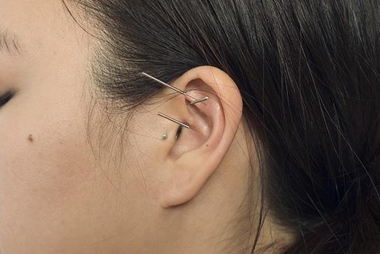 Emily-Grace-Auricular-Acupuncture.jpg