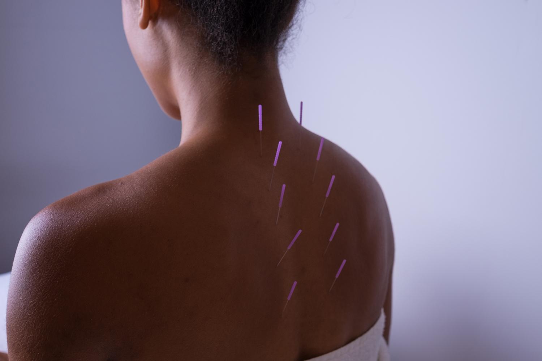 Emily_Grace_Acupuncture_Acu.jpg