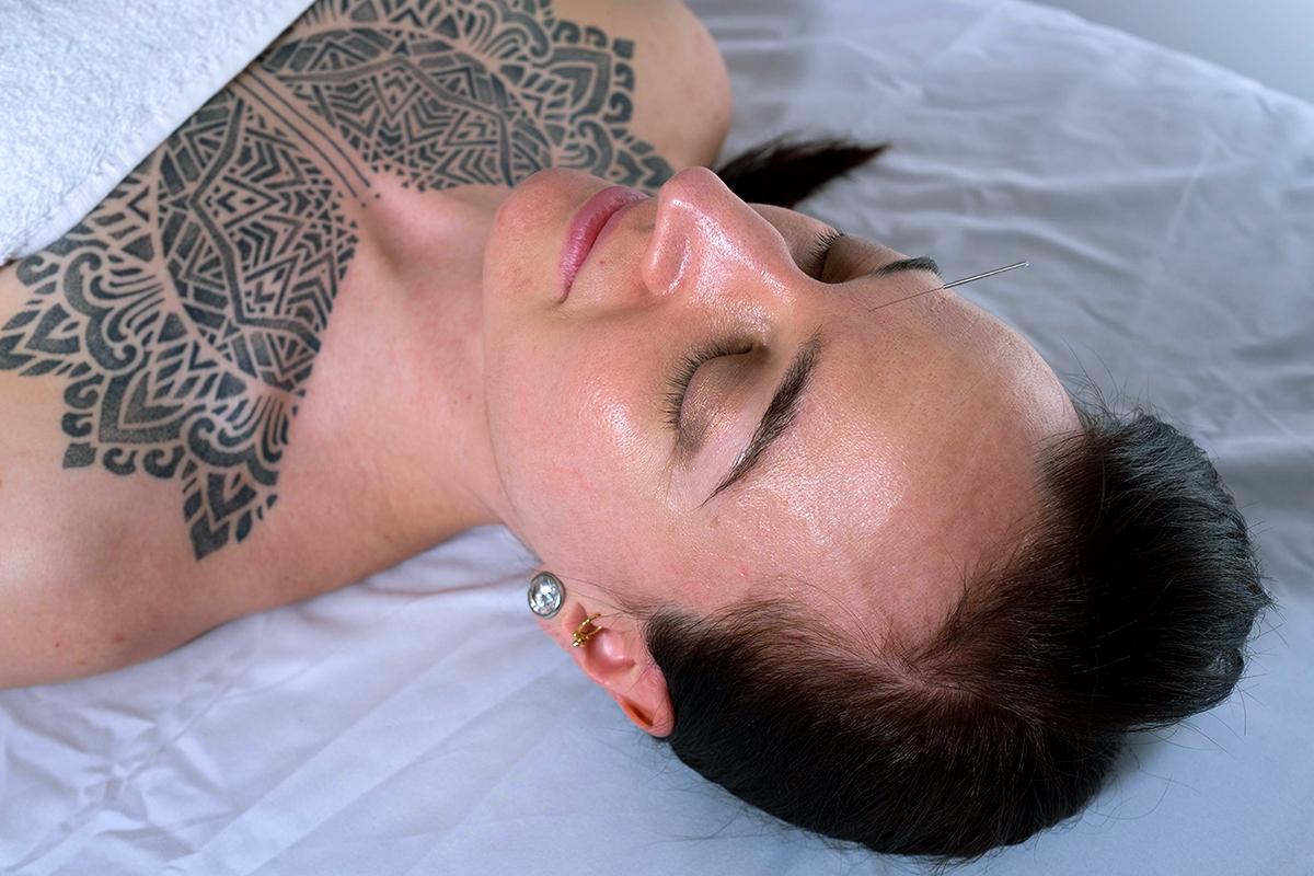 Emily_Grace_Acupuncture_Carol_Facial_Acu.jpg