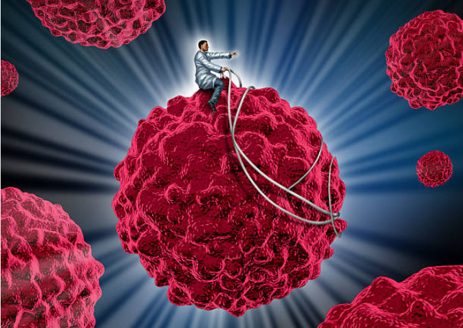 Bringing cancer immunotherapy to pancreatic cancer - JAN 2019 The Abramson Cancer Center to host symposium from April 11-12, 2019 on Immunology and Immunotherapy for Pancreatic Cancer.