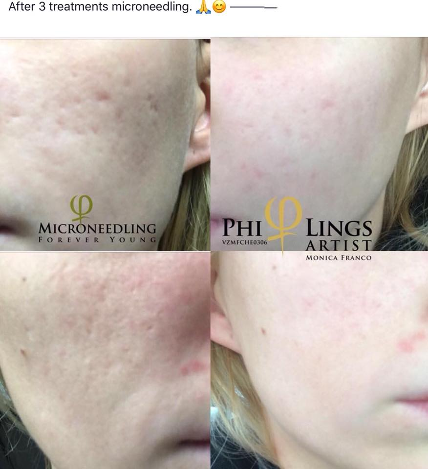 Acne Scarring Micro/SkinNeedling - Skin Needling with PhiLings Acne/Scar Serum, combined with a special techniques to help improve icepick acne scarring.Only available with a certified PhiLings Artist.Zero Interest Payment Plans available for Packages$1100 for 6 treatments (normally $250 a session)